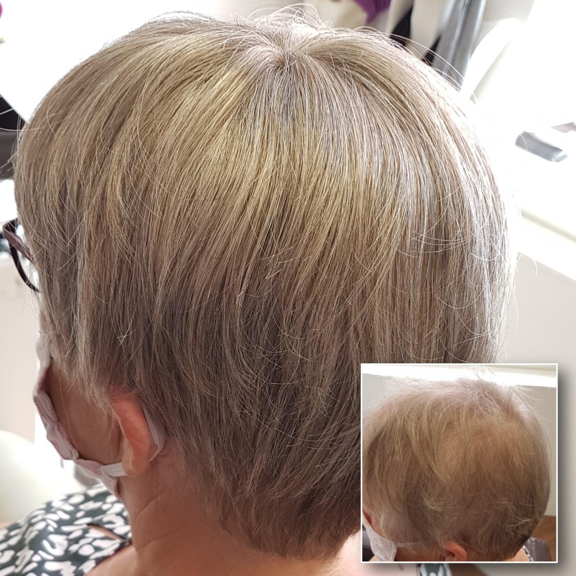 Hair Topper – Haarverdichtung durch eine Haarintegration