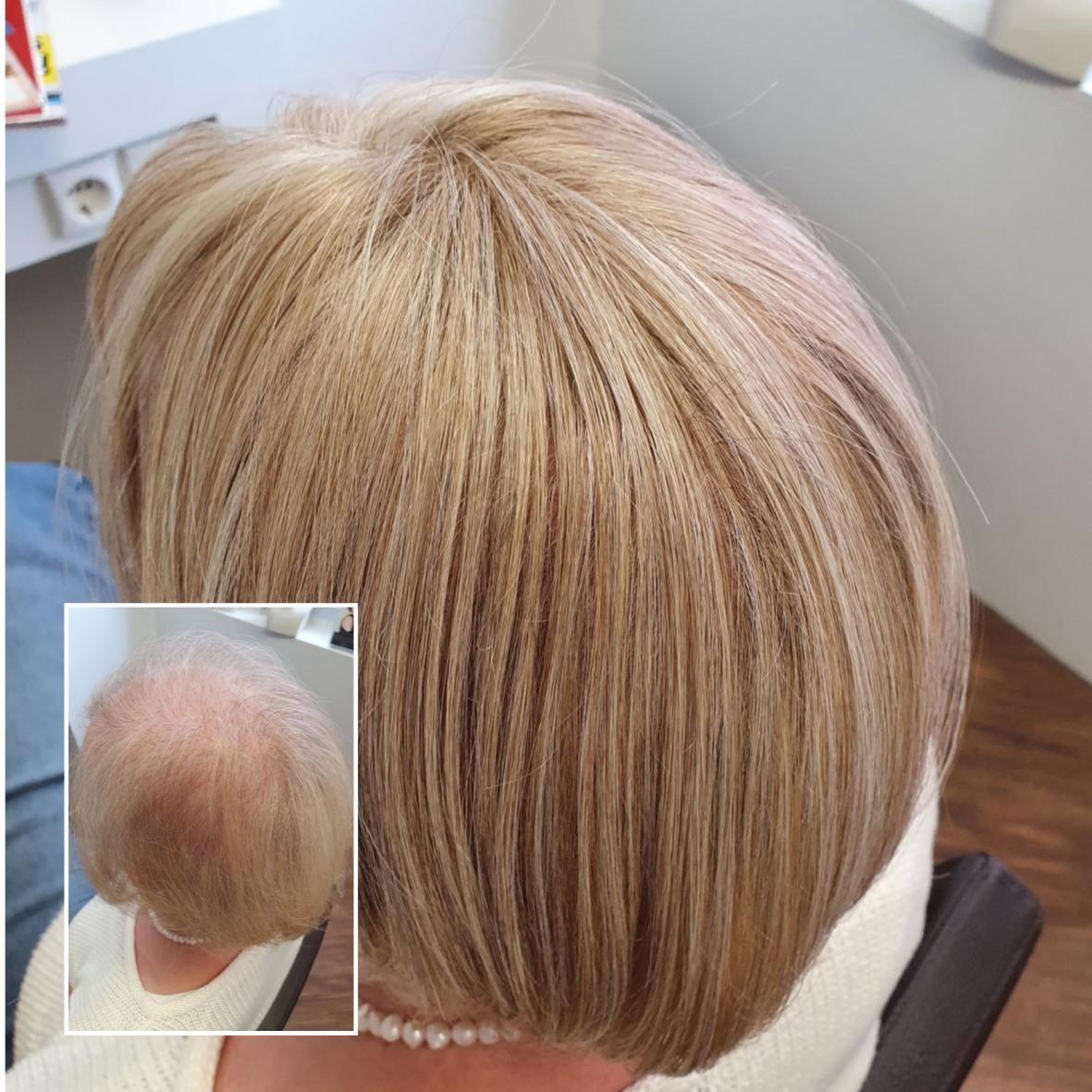 Die Lösung für dünner werdendes Haar